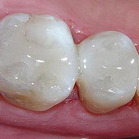 White Fillings Okotoks