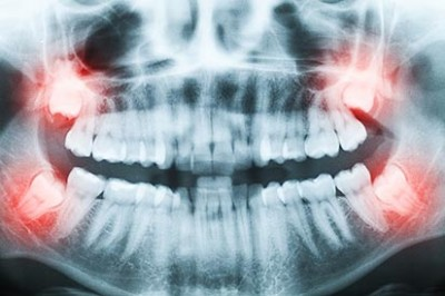 wisdom-teeth-x-rayl
