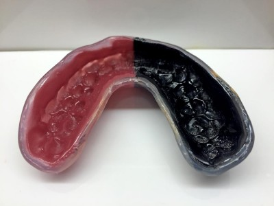 Okotoks Custom Mouthguards Cornerstone Dental
